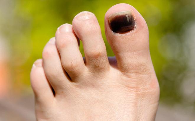 Sơ cứu khi bị dập ngón chân