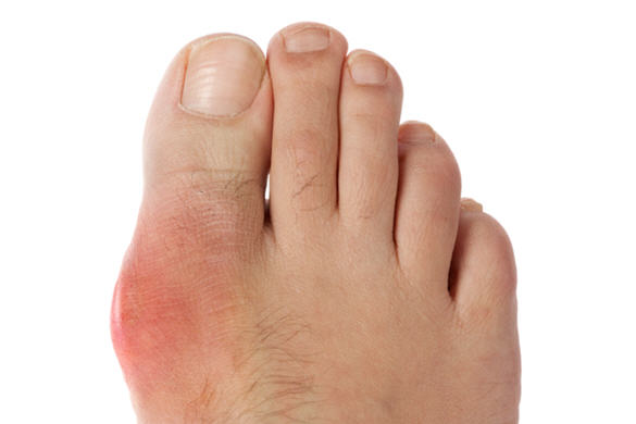 Chọn sai giày bảo hộ ảnh hưởng đến chân