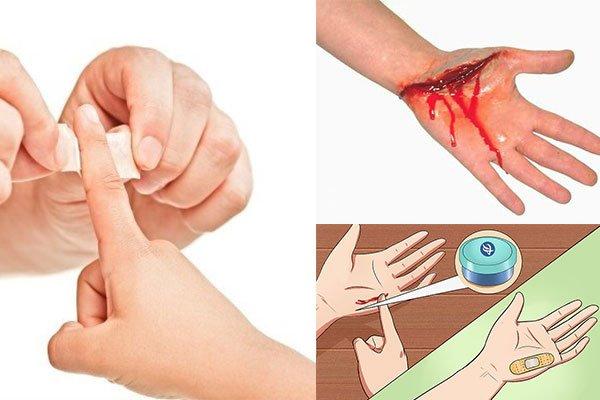 Làm gì khi bị đứt tay sâu, nhẹ, và cách sơ cứu